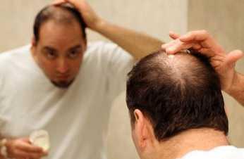 Выпадение волос при интоксикации