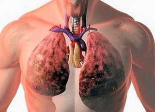 Химический ожог легких