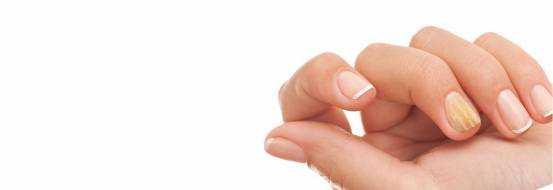 Грибок ногтей на руках – средства лечения, фото начальной стадии
