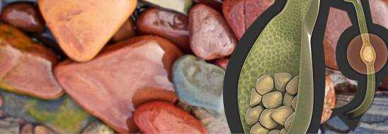 Камни в желчном пузыре, симптомы, лечение и удаление без операции