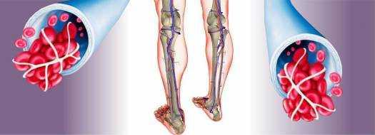 Тромбофлебит нижних конечностей, лечение, симптомы и фото вен