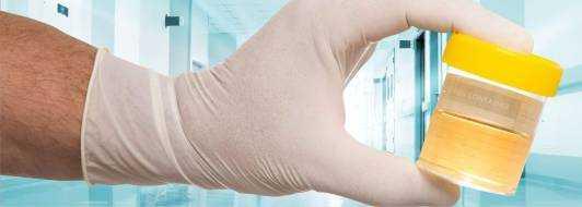 Повышенные лейкоциты в моче: причины у ребенка, женщин, мужчин