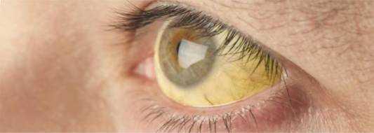 Синдром Жильбера – что это такое, симптомы, лечение