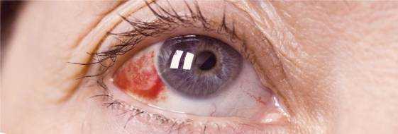 Лопнул сосуд в глазу – что делать, причины, лечение каплями, фото