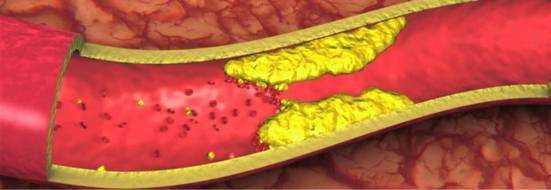 Холестериновые бляшки в сосудах, шее, на веках – удаление, как избавиться