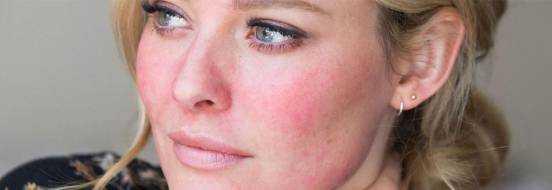 Розацеа на лице, лечение и причины, симптомы и фото