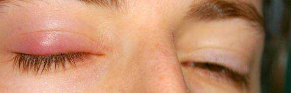 Воспаление века глаза – лечение верхнего и нижнего века, фото