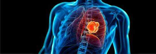 Метастазы в легких – прогноз, сколько живут, симптомы и лечение