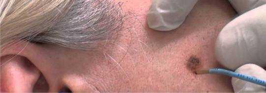 Удаление невуса – лазером, хирургическое, как удалить без последствий