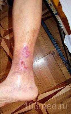 Глубокая трофическая язва на ноге