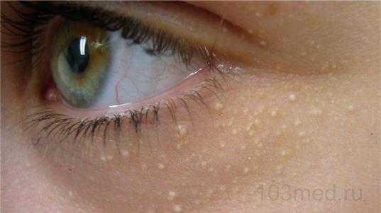 Жировики на лице в виде белых точек вокруг глаз