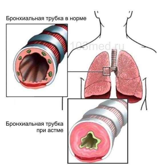 Состояние бронхиальной трубки при астме