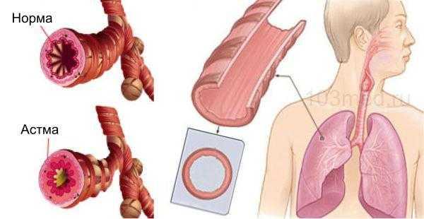 Что происходит с бронхами при бронхиальной астме