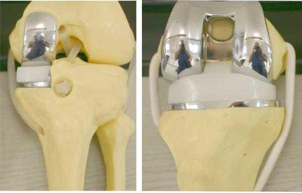 Как выглядит эндопротез для колена