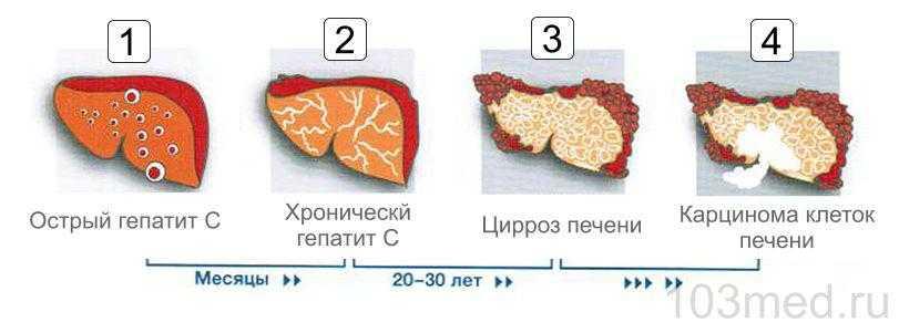 Последствия вирусного гепатита C для печени