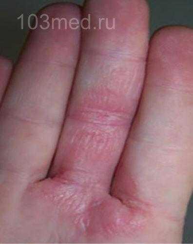 Симптомы между пальцев на руке