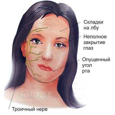 Последствия для лица