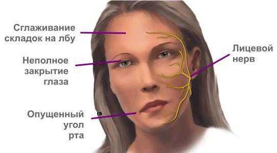 Симптомы лицевого неврита