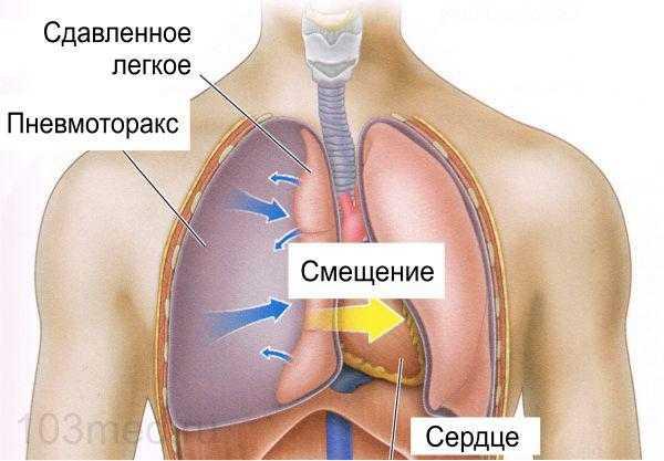 Что происходит при пневмотораксе
