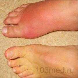 Сравнение суставов здоровой и больной ступни