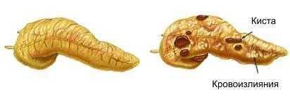 Изменения в поджелудочной железе при панкреатите
