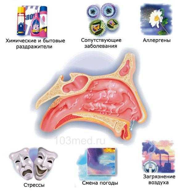 Причины аллергического ринита