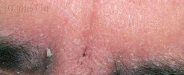 Фото себорейного дерматит на лбу