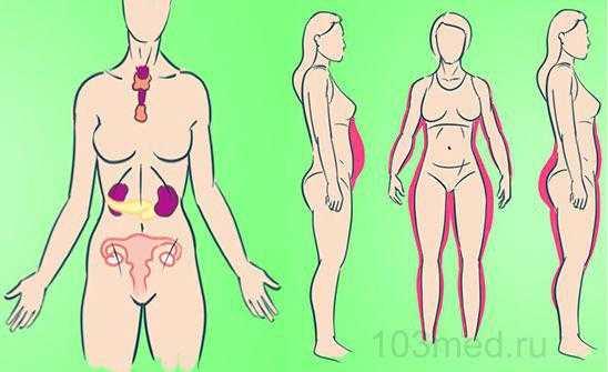 Симптомы и признаки гормонального сбоя у женщин