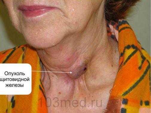 Внешние симптомы рака щитовидной железы