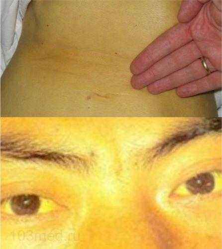Симптомы вирусного гепатита на коже