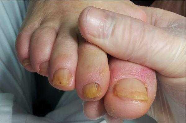 Грибок ногтей при синдроме диабетической стопы