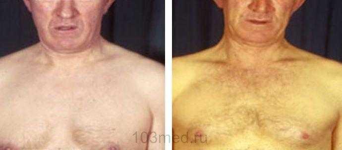 Внешний вид кожи при синдроме Жильбера и без него