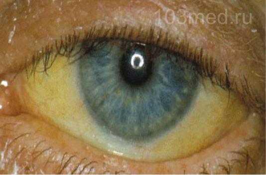 Признаки на глазах