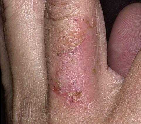 Стрептодермия на пальце руки