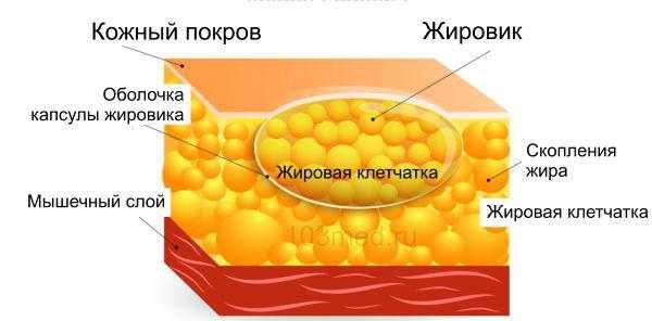 Структура жировика