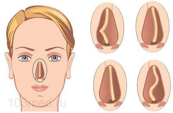 Типы искривления носовой перегородки, ведущие к вазомоторному риниту
