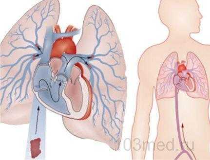 Расположение легочной артерии