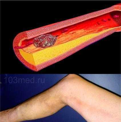 Фото причины тромбоза