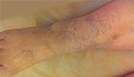 Фото симптомы тромбоза