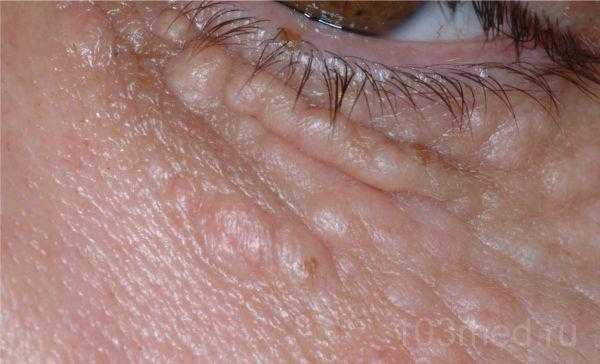 Множественные сливающиеся жировики вокруг глаз