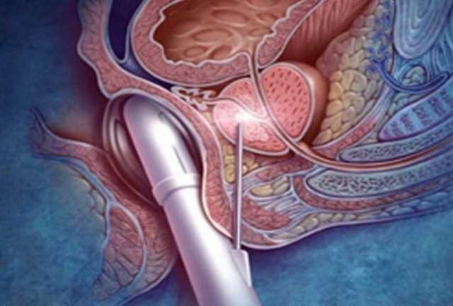 диффузные изменения предстательной железы что это значит