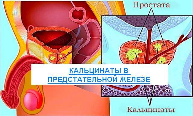 кальцинаты в предстательной железе