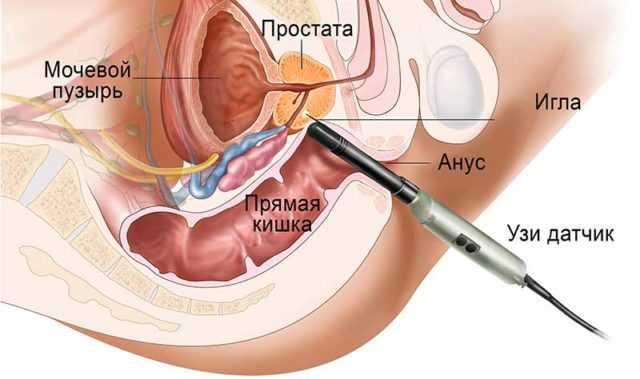 пункция под контролем узи предстательной железы