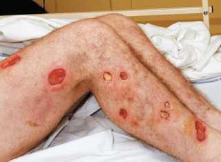 Ботулизма рана