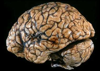 Отравление головного мозга