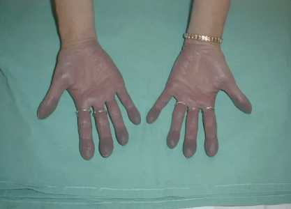 Побледнение кожи