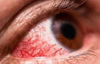 Воспаление глаз и слезотечение