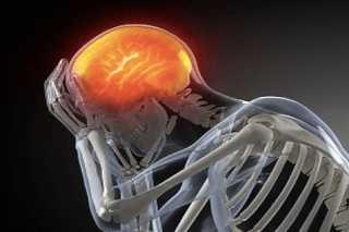 Токсическое действие на мозг
