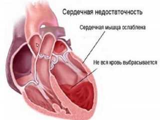 Истощение сердечной мышцы