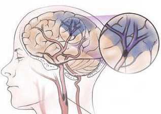 Формирование энцефалопатии